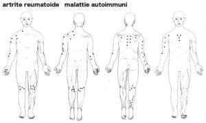 artrite_reumatoide1