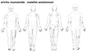 artrite_reumatoide2