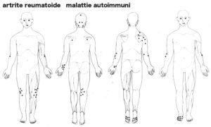 artrite_reumatoide3