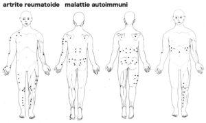 artrite_reumatoide4